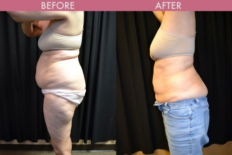 Liposuction Images