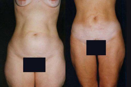 Liposuction Surgery Images