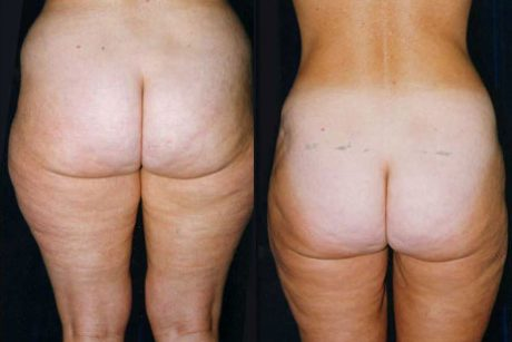 Liposuction Pictures