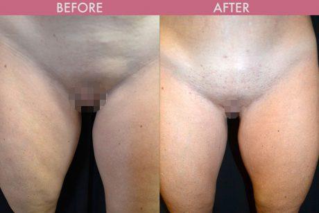 Labiaplasty Images