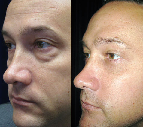 Blepharoplasty Surgery Images - Berman Cosmetic Surgery