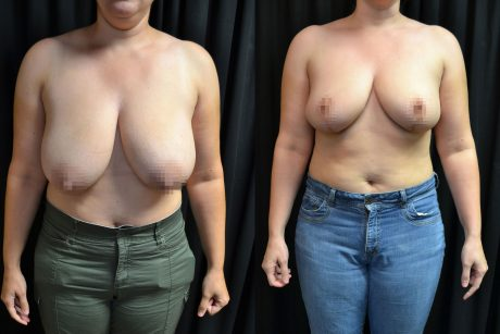 Breast Reduction Images