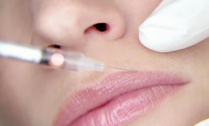 Berman Cosmetic Surgery & Skincare Center - Reversing Facial Fillers - Blog