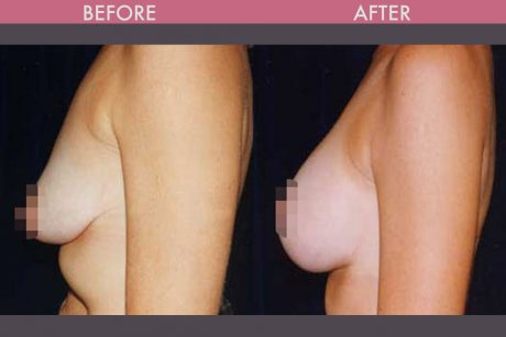 Breast Lift Pictures