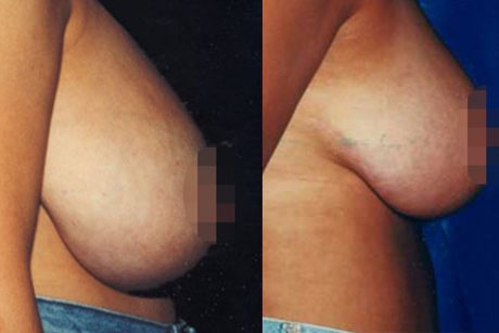 Breast Reduction Surgery Images