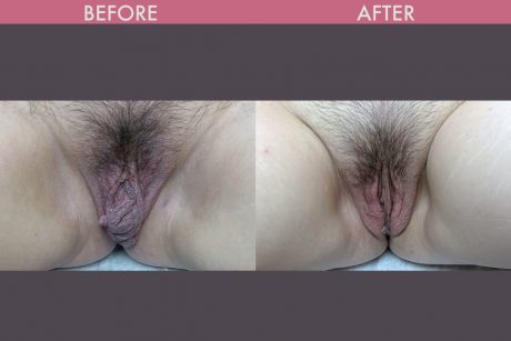 labiaplasty before and after images