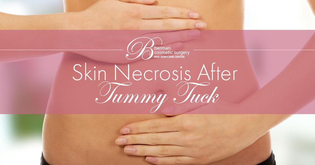 Tummy Tuck Necrosis