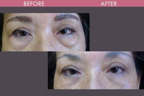 Blepharoplasy Before and After