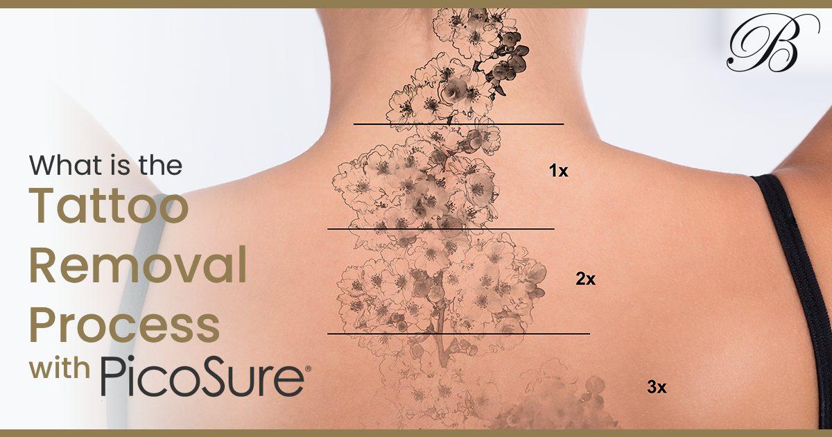 Picosure Tattoo Removal Process