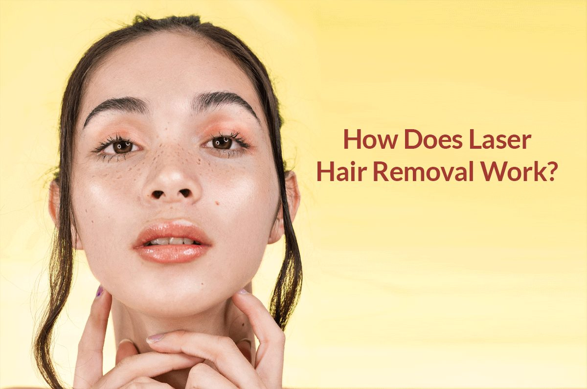 What is Laser Hair Removal