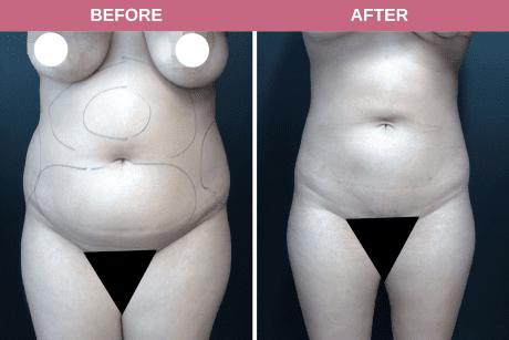 Smartlipo upper/lower abdomen 20-year-old female 6.5 months post-op