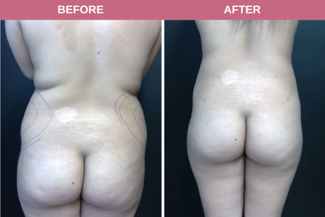 Smartlipo flanks 20-year-old female 6.5 months post-op