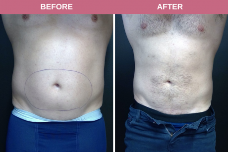Smartlipo Lower Abdomen + Flanks 35-year-old male 5 months post-op