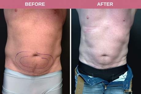 SmartLipo Periumbilical x Flanks 59-year-old male 3 months post-op