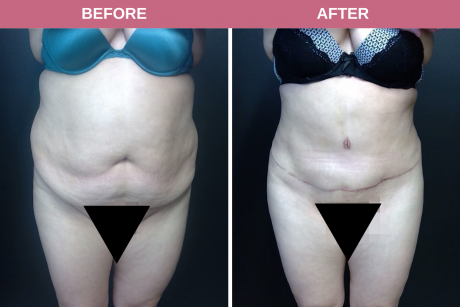Tummy Tuck 44-year-old female patient 8 months post-op