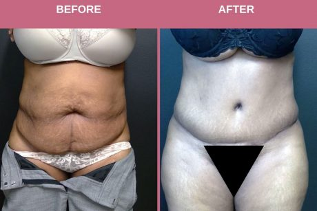 49 year old woman treated with Tummy Tuck 3.75 months post op