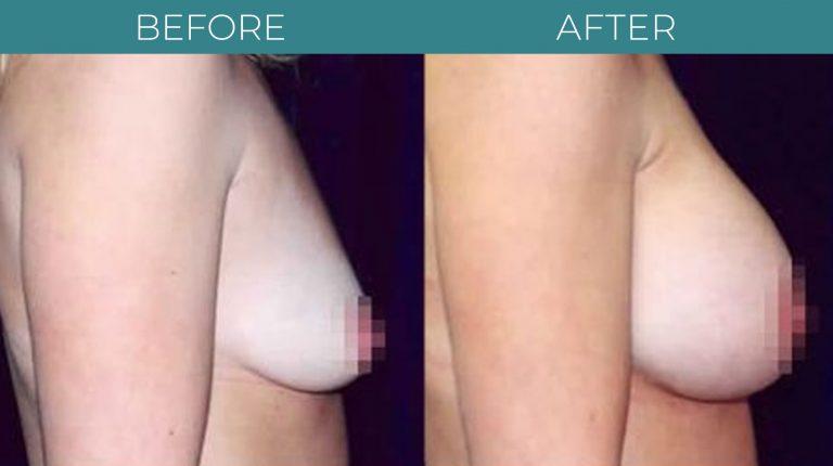 Breast Augmentation-BA_1
