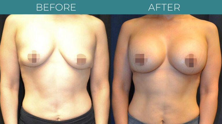 Breast Augmentation-BA_10