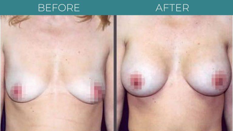 Breast Augmentation-BA_2