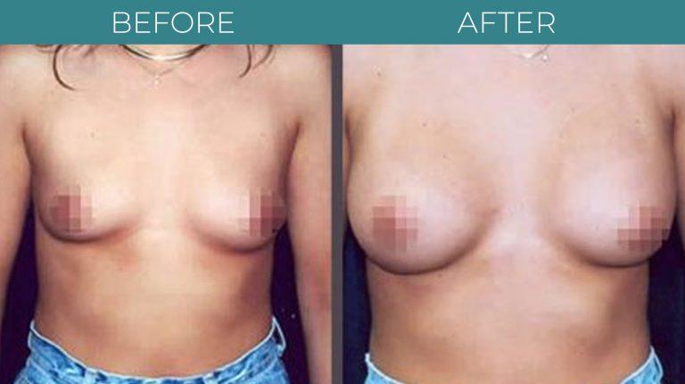 Breast Augmentation-BA_3
