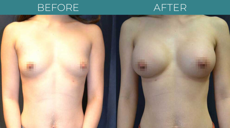 Breast Augmentation-BA_5