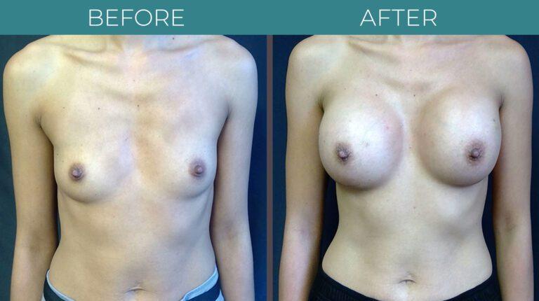 Breast Augmentation-BA_6