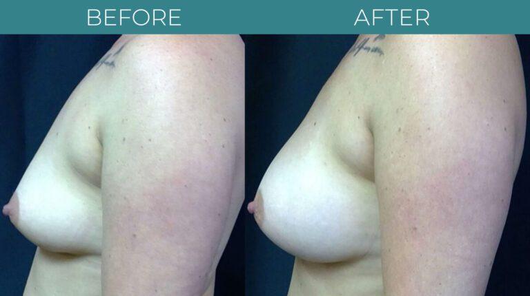Breast Augmentation-BA_7