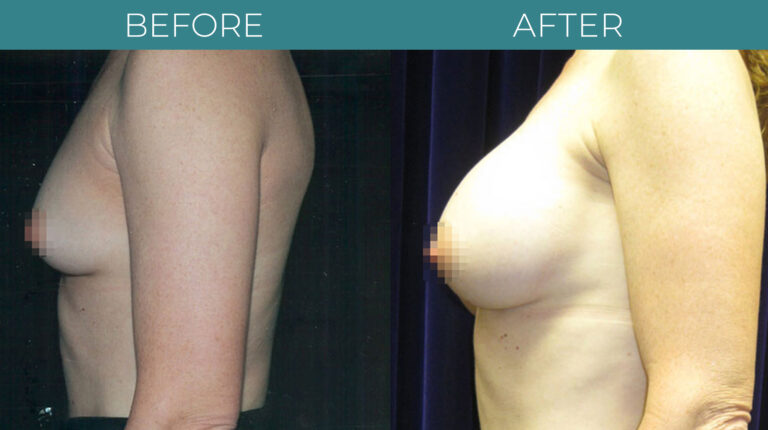Breast Augmentation-BA_8