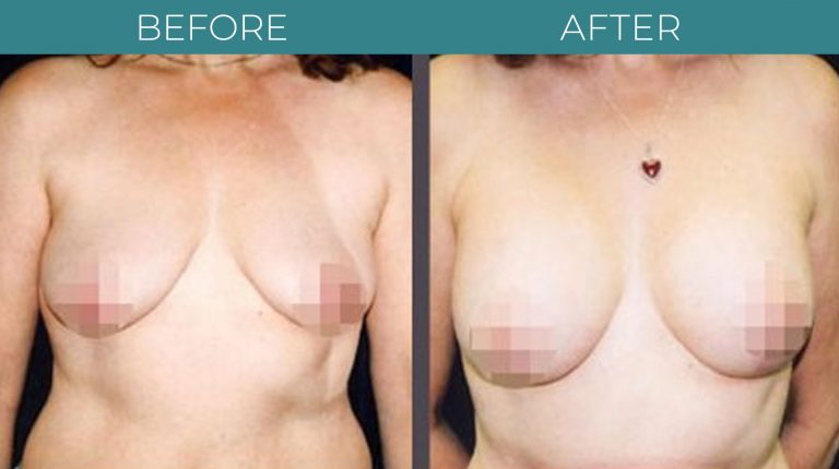 Breast Lift-BA_1