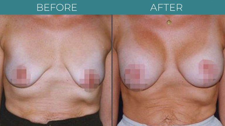 Breast Lift-BA_3