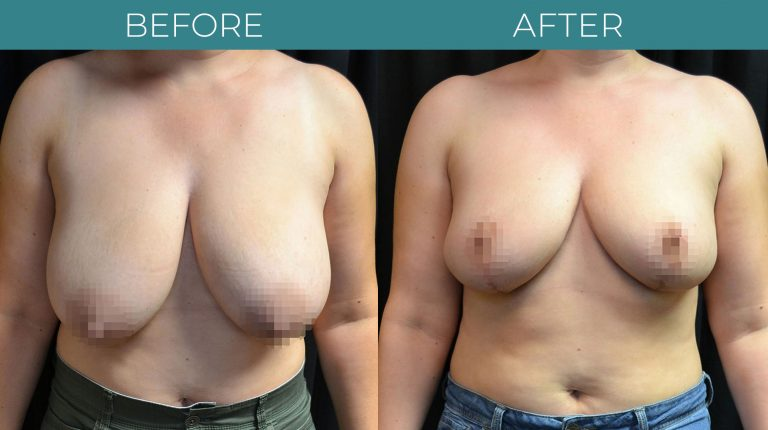 Breast Reduction-BA_1