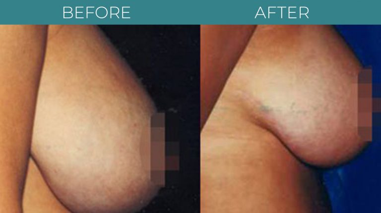 Breast Reduction-BA_3