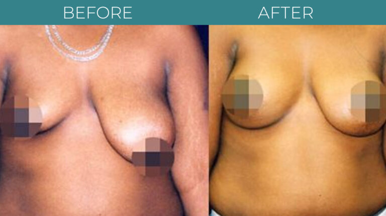 Breast Reduction-BA_4