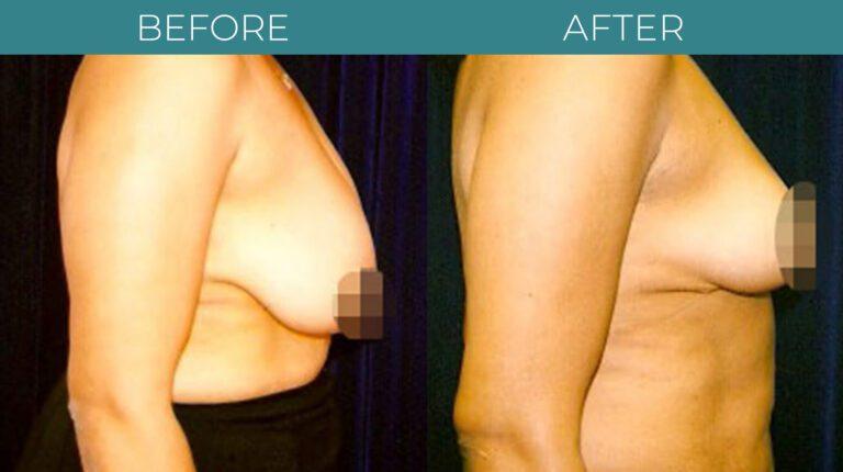 Breast Reduction-BA_5