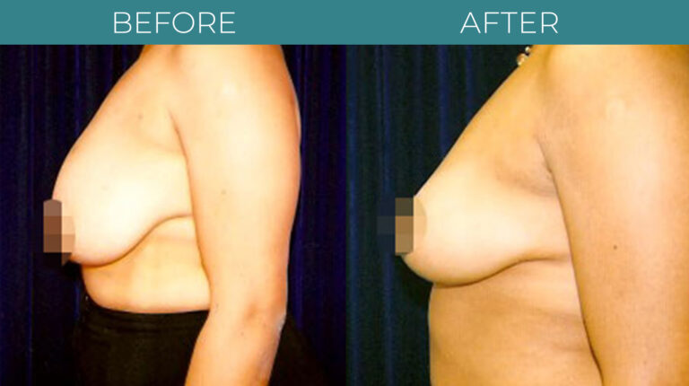 Breast Reduction-BA_6