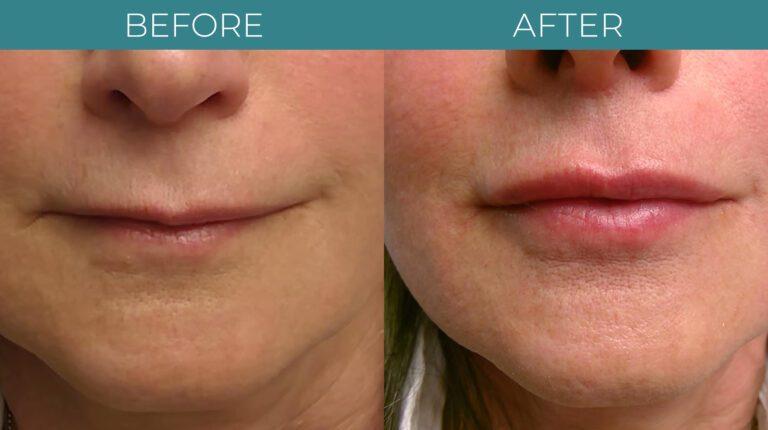 Facial+Lip Filler-BA_2
