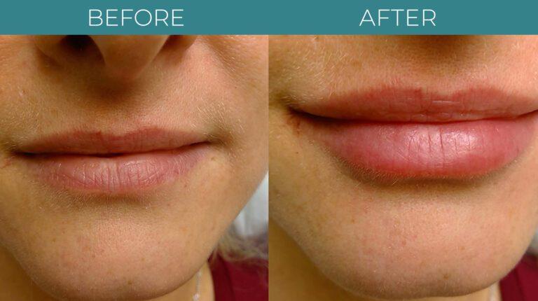 Facial+Lip Filler-BA_3