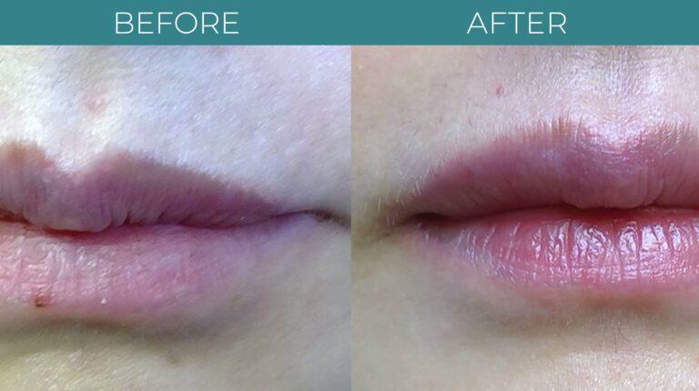 Facial+Lip Filler-BA_4