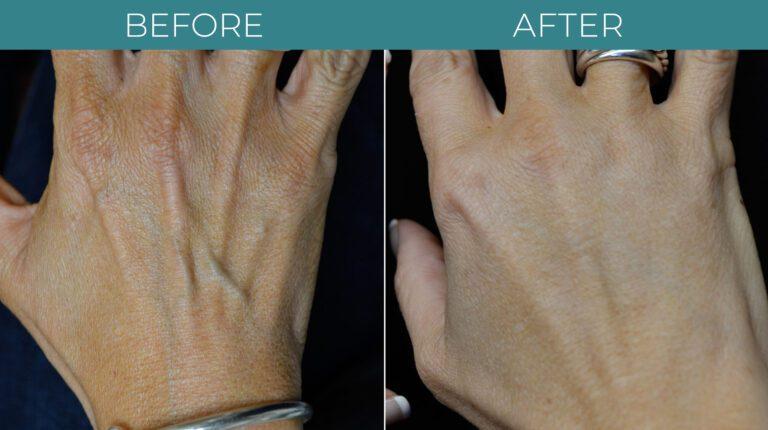 Hand-Rejuvenation-BA_2