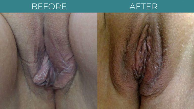 Labiaplasty-BA_2