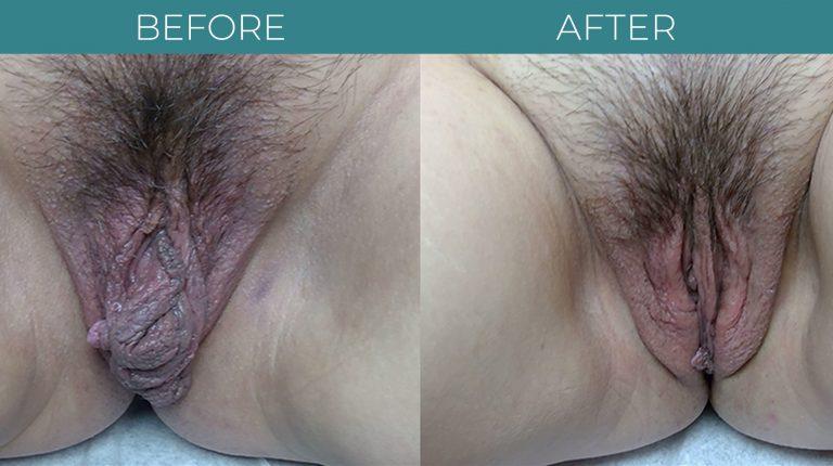 Labiaplasty-BA_3