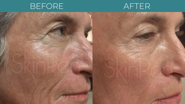 Microneedling with PRP-BA_1