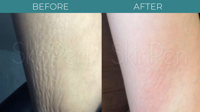 Microneedling with PRP-BA_3