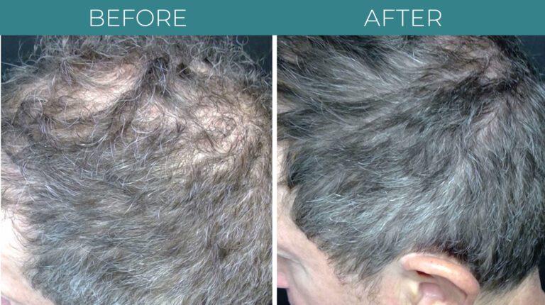 PRP for Hair Loss-BA_1