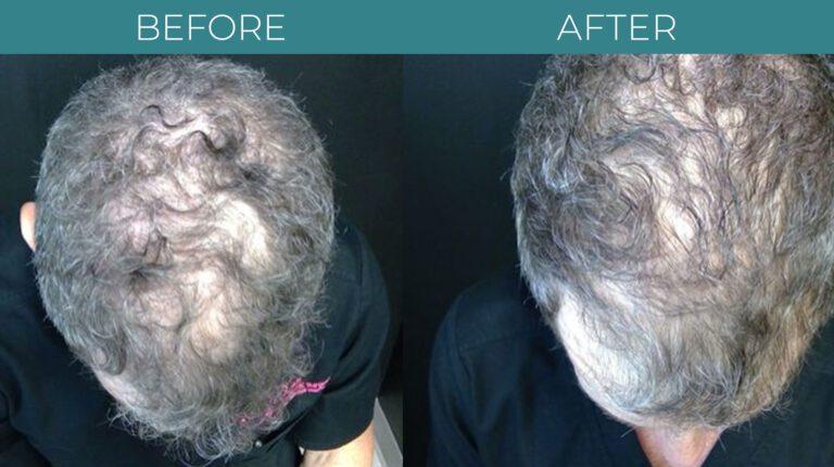 PRP for Hair Loss-BA_2