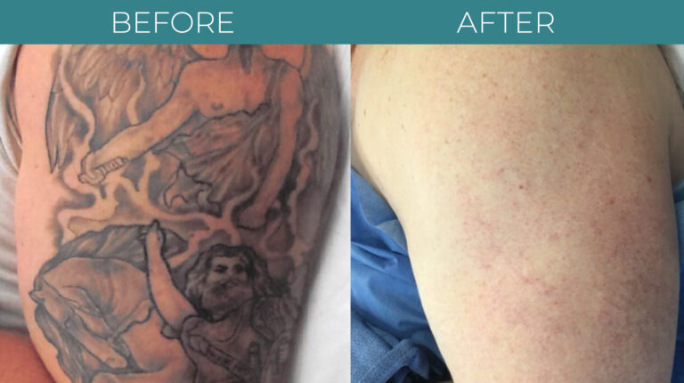 PicoSure tattoo-BA_1