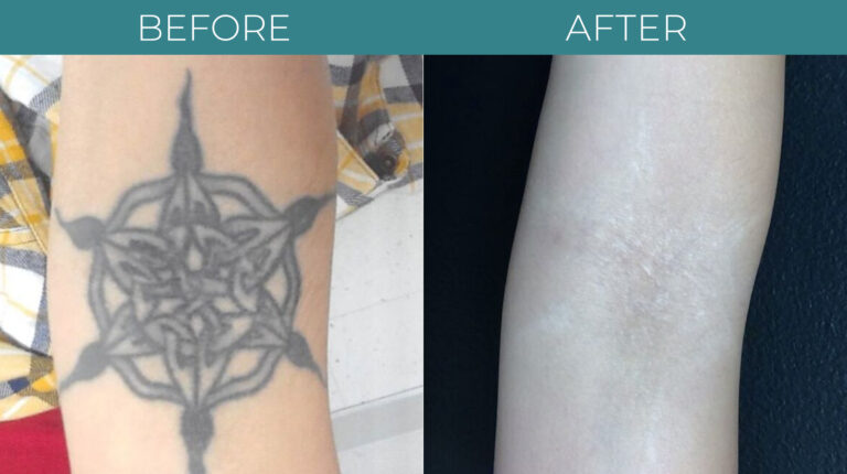 PicoSure tattoo-BA_2