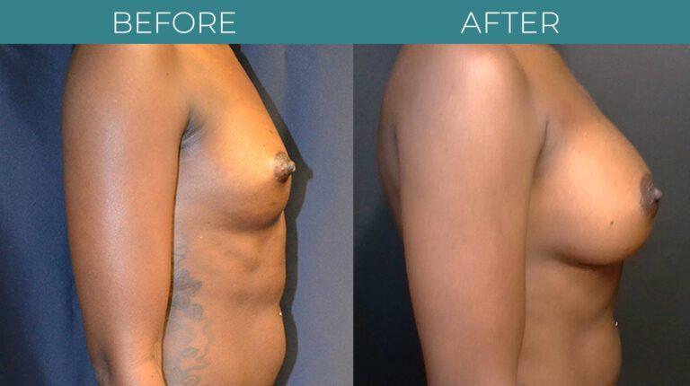 Breast Augmentation_6
