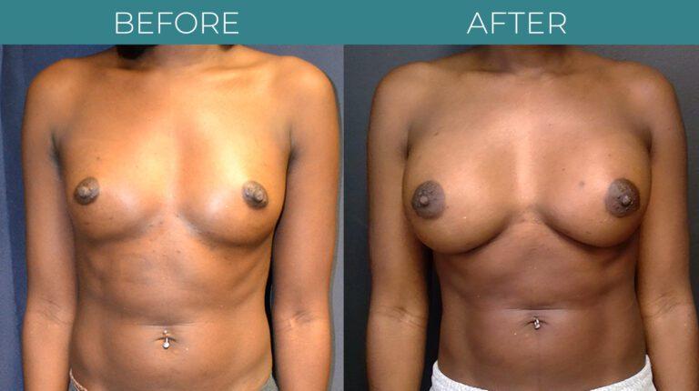 Breast Augmentation_7