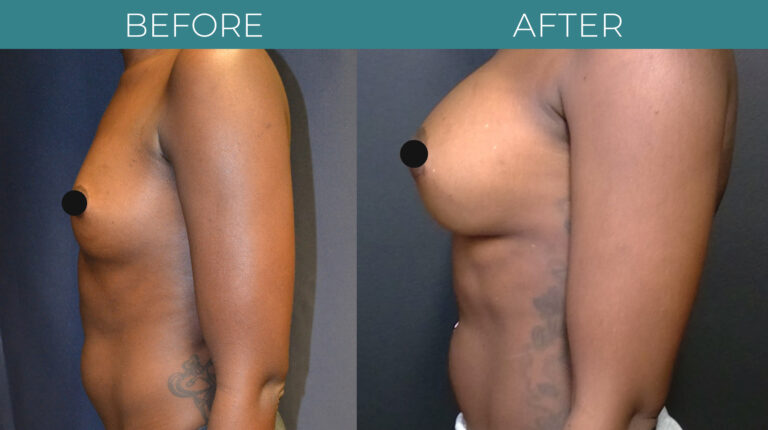 Breast Augmentation_8